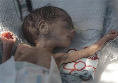 فاجعه انسانی در جنگ یمن؛ بچه هایی که پوستشان به استخوان چسبیده