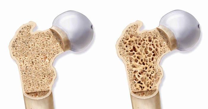 چهل- پنجاه ساله ها بخوانند، تفاوت بین پوکی استخوان اولیه و ثانویه